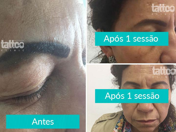 Remoção de Micropigmentação - Final do Tratamento